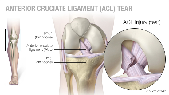 mayo-clinic-q&a-podcast:-proper-training-can-reduce-the-risk-of-acl-injury