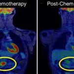 pet/mri-biomarkers-guide-personalized-treatment-for-patients-with-pancreatic-cancer